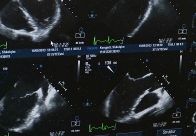 Tips to Know About Horos – The Best Free DICOM Viewer